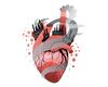 L'infarctus du myocarde est-il une maladie environnementale?