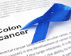 Drievoudige combinatietherapie met encorafenib-binimetinib-cetuximab bij gemetastaseerde colorectale kanker met een BRAF V600E-mutatie