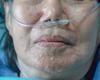 Beslissingsboom thuiszorg patiënten COVID-19 bij verzadiging ziekenhuizen