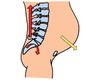 Lagerugpijn en bekkenpijn van osteoarticulaire oorsprong tijdens de zwangerschap en na de bevalling