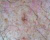 Une lésion grise sur la poitrine