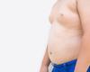 Gynécomastie pubertaire: déficit relatif en testostérone par rapport à l'estradiol