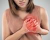 Antifosfolipidenantistoffen en myocardinfarct met gezonde kransslagaders
