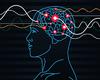 Onderzoekers KU Leuven brengen elektroden in hersenzone aan voor herkennen voorwerpen