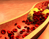Risque cardiovasculaire dans l'arthrite psoriasique