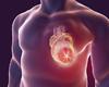 Hartcentrum OLV Aalst is gestart met gebruik van innovatieve software om hartfalen te voorspellen