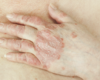 Arthrite psoriasique et lésions cutanées