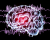 Epilepsie treft in Vlaanderen zo'n 60.000 mensen