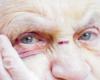 L'opposition flamande flingue la majorité sur le manque de soutien aux maisons de repos