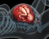 Transfusion placento-fœtale et césarienne: bilan des nouvelles pratiques