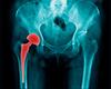 Service d'orthopédie-traumatologie: Inégalité de longueur des membres après arthroplastie de la hanche: prévention et traitements