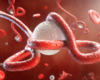 Eerste geval van ebola in stedelijk gebied in Congo (WHO)