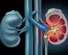Dépistage déficient de l'hyperparathyroïdie primaire en cas de calculs rénaux et d'hypercalcémie