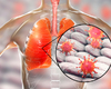 Mysterieuze longziekte in China mogelijk veroorzaakt door nieuw type coronavirus