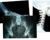 Artificiële intelligentie helpt radiologen van UZA levens redden