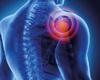 Épaule douloureuse: enclavement proximal du nerf suprascapulaire dû à un ostéome ostéoïde de l'épine scapulaire