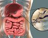 Traitement de l'infection à H. pylori en prévention du cancer gastrique métachrone