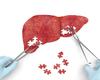 Lenvatinib ou sorafénib en 1ère intention en cas de carcinome hépatocellulaire inopérable