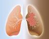 Cancer du poumon: agent double!