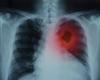 Kan canakinumab de incidentie van en de sterfte door longkanker terugdringen bij atherosclerose?