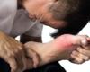 Évaluer et prévenir les lésions articulaires en cas de goutte