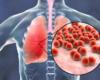 Recidiverende infecties bij reumatoïde artritis