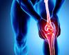 Bone Therapeutics boucle le traitement pour son essai clinique contre l'arthrose du genou