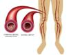 Insuffisance rénale chronique et artérite des membres inférieurs