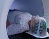 L'ostéoradionécrose mandibulaire: physiopathologie, épidémiologie, diagnostic et prévention