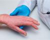 Le dupilumab au long terme en clinique quotidienne: efficace et sûr