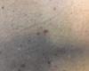 Dermoscopie: lésion bicolore du dos