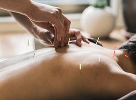 L'acupuncture efficace contre quoi? L'intrigant exemple de l'angine de poitrine