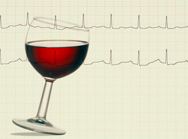 Alcool et FA: la fréquence est plus importante que la quantité