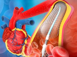Sténose du tronc commun de la coronaire gauche: outcomes comparables pour l'angioplastie et le pontage