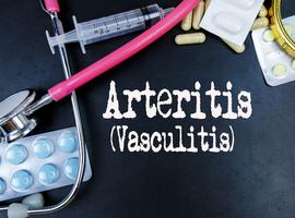 Aanbevelingen van de EULAR voor reuscelarteriitis