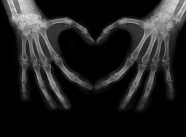 Streven naar remissie van reumatoïde artritis om het hart te beschermen