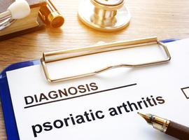 De 2019 update van de EULAR-aanbevelingen voor de farmacologische aanpak van psoriasisartritis