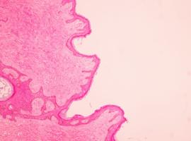 Mammoleaks: pleidooi voor geïndividualiseerde borstkankerscreening (Drs Fabienne Liebens (Isala Brussel) & Pino Cusumano (CHU Luik)