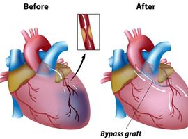 Coronaire bypassoperatie: DAPT voorkomt falen van de saphena-ent beter dan aspirine alleen