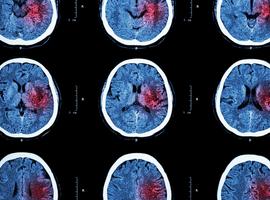 Effet d'une supplémentation en acides gras à chaîne courte sur la récupération après un accident vasculaire cérébral