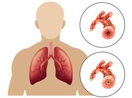 COPD: een drievoudige combinatietherapie verlaagt het aantal exacerbaties en…