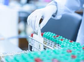 Hugues Malonne (afmps) dément tout conflit d'intérêt dans l'évaluation de tests sérologiques