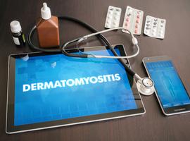Autoantilichamen bijdermatomyositis
