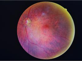 Vitamine A om het retinopathieproces bij diabetici te voorkomen of vertragen