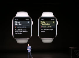 Cardioloog sleept Apple Watch voor de rechter