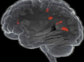 Icometrix  lève 18 millions de dollars pour Icobrain, sa solution d'IA en imagerie médicale