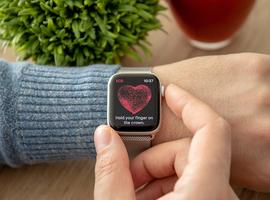 Apple Watch met ECG-functie nu ook beschikbaar in België, maar het is uitkijken voor valse-positieve resultaten