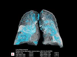 Siemens Healthineers geeft radiologen intelligente digitale assistent