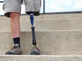 Axiles Bionics : une prothèse du pied mélange robotique et intelligence artificielle