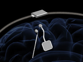 WAND : un nouveau dispositif de neurostimulation sans fil